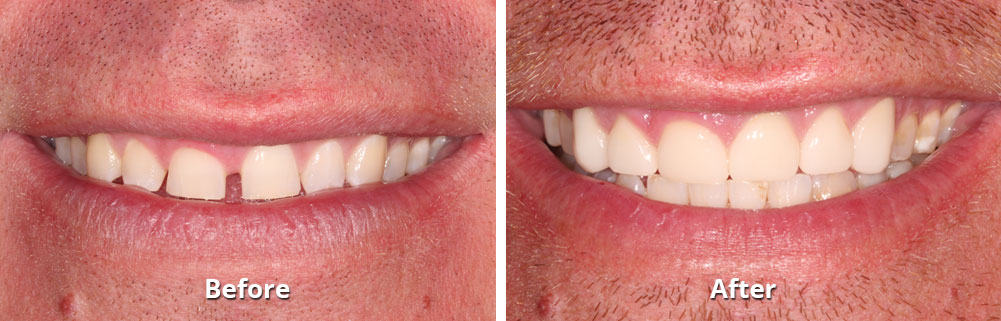 Dental Before and After Photo
